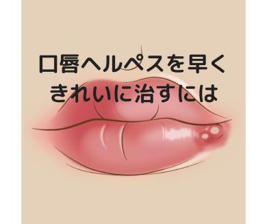 唇 ヘルペス 原因
