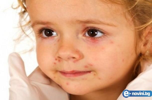 Непознат вирус удря децата на България! Симптомите са...
