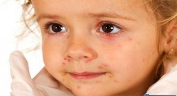Непознат вирус удря децата на България! Симптомите са…