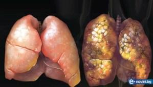 изчистване на белите дробове