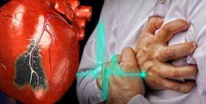 Ако сърдечният удар ви хване на улицата ще имате само две минути!