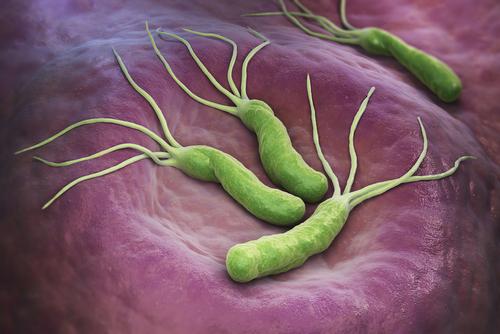 Chronický helikobakter (Helicobacter pylori)