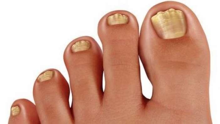 Μύκητες στα πόδια: Συμπτώματα και θεραπεία