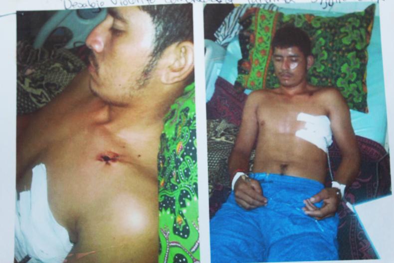 Honduras scars