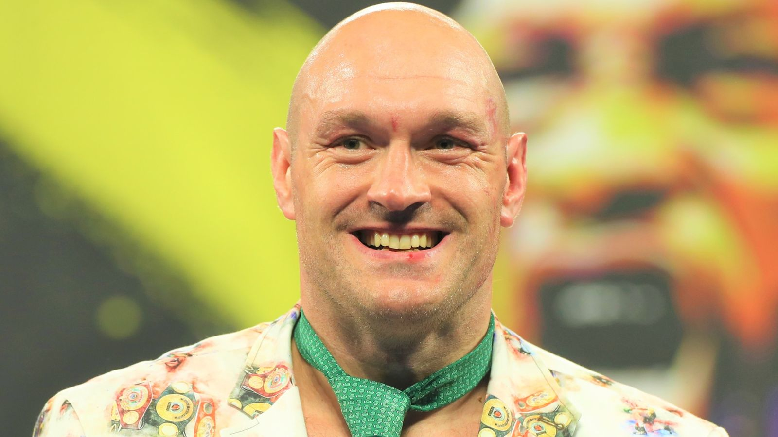 Photo of Tyson Fury may struggle Dillian Whyte this yr if settlement is reached, WBC verify