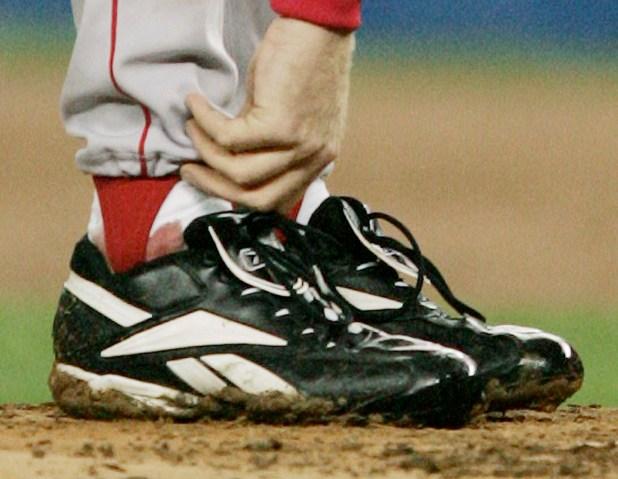 El famoso calcetín sangriento de Curt Schilling en el Juego 6 de...