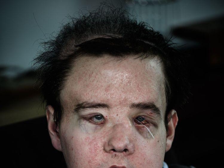 Jerome Hamon, le premier homme au monde à subir deux fois une greffe de visage