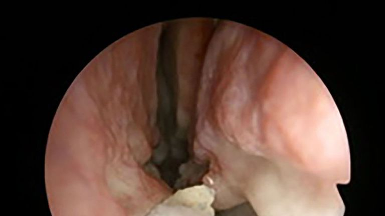 Picture taken by an endoscope of the tooth before it was extracted. Pic: BMJ Case Reports