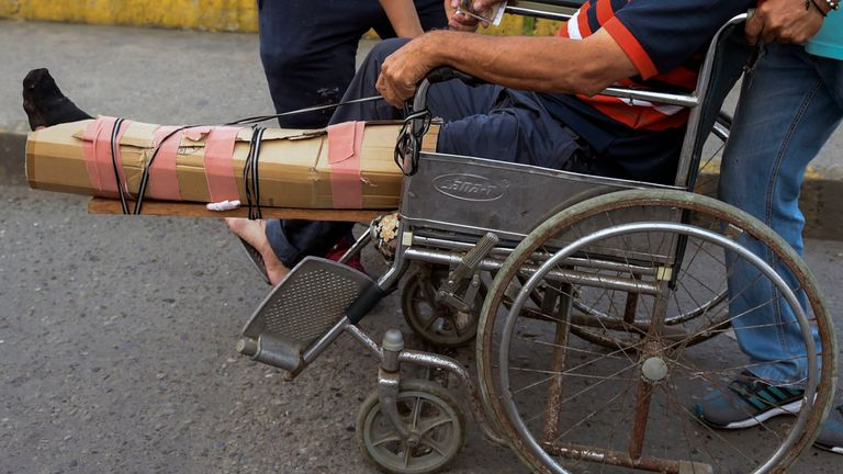 A man with an improvised splint is wheeled across the Simon Bolivar International Bridge on the border between the Colombian city of Cucuta and the Venezuelan Tachira