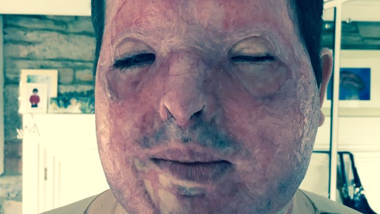 Andreas Christopheros had a pint of sulphuric acid thrown in his face