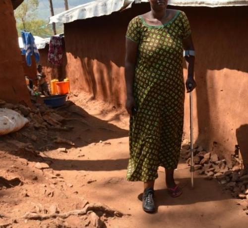 Africana victima de minas antipersona