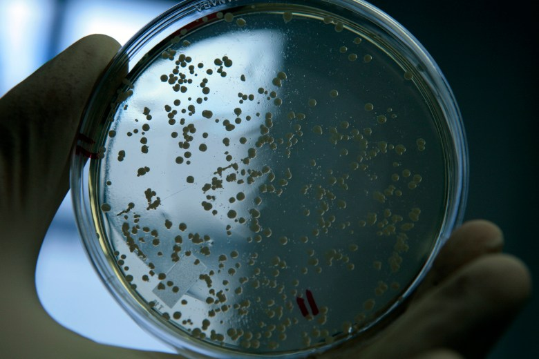 A sample of live MRSA bacteria in a laboratory at the University of Chicago. (Zbigniew Bzdak/Chicago Tribune/TNS)