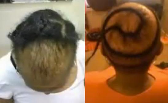 dangers-of-hair-weave