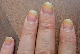 8 Health Warning Signs Your Fingernails May Be Showing You!