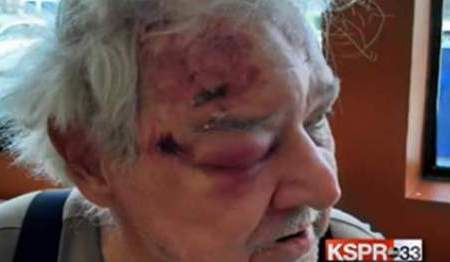 78-Year Old Man Calls Police To Aid His Wife & Cops Beat Him