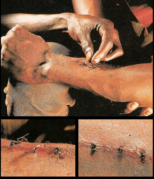 Did You Know Medical News: Soldier Ants Were Used To Stitch Wounds In Africa