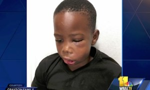 School Tutor Who Broke A 7-Year Old Boy's Jaw By Throwing Him Against A Wall Has Been Arrested And Charged With Assault