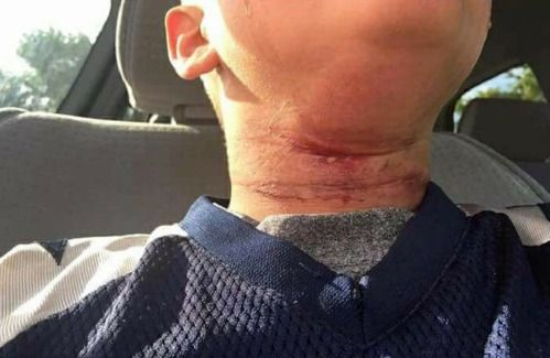 Image result for Racist White teens reportedly attempted to lynch 8-year-old