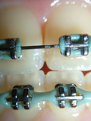 close up of braces on teeth