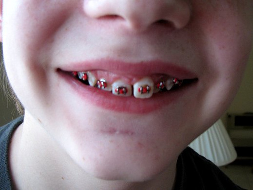 close up picture of boy's mouth with new braces on teeth