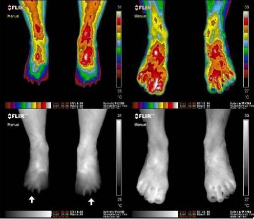 earthing-foot-pain
