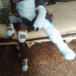 13-Year-Old Boy Thrown Into Fire For Allegedly Stealing Food In Ebonyi