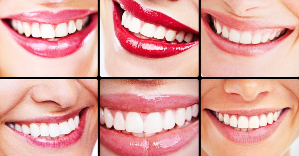 The differences between Veneers and Dental Bonding: choosing what's best for you.
