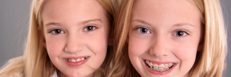 vancouver dentist braces