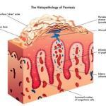 Psoriasis – Ayurvedic Treatment, Medicines, Herbs, Remedies