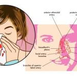 Epistaxis (Nose Bleeding):  Causes, Treatment, Modern Concept