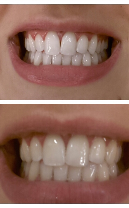 Souvent Le secret de mes dents blanches ? LW81