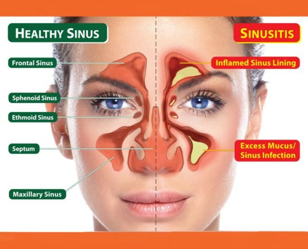 The Unconventional Guide to Healing Sinus Infections!