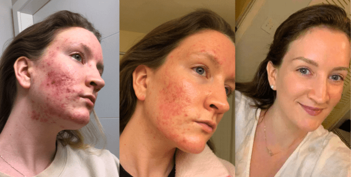 acne before and after.