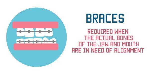 braces for gaps