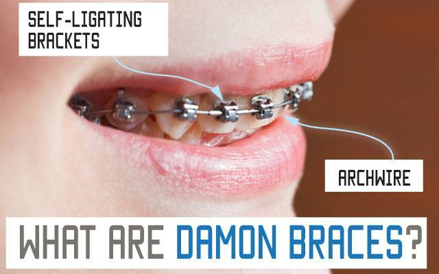 what are damon braces