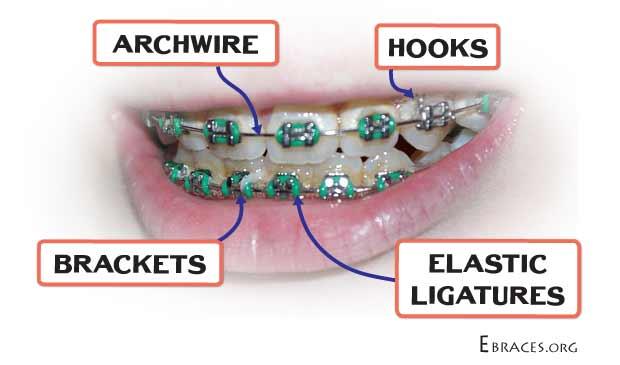 braces parts