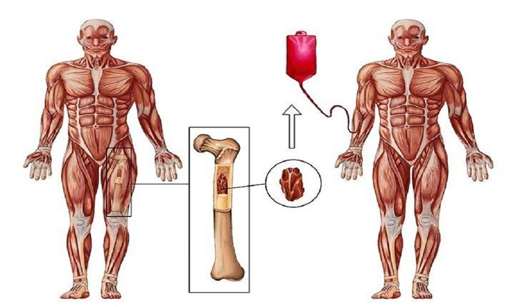 Bone marrow transplant - eBuddy News