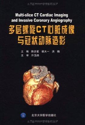 多层螺旋CT心脏成像与冠状动脉造影