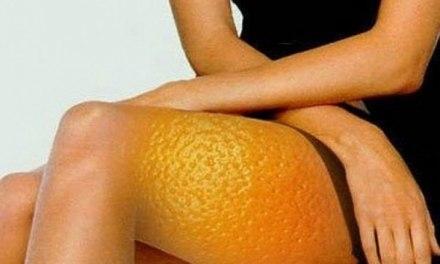 Come sbarazzarsi dalla cellulite sulle cosce