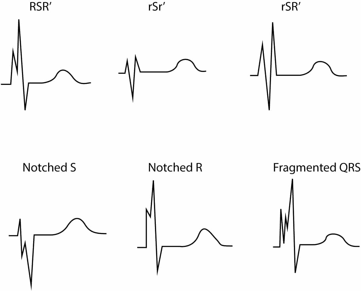 Other Ecg Changes In Ischemia And Infarction Ecg Learning