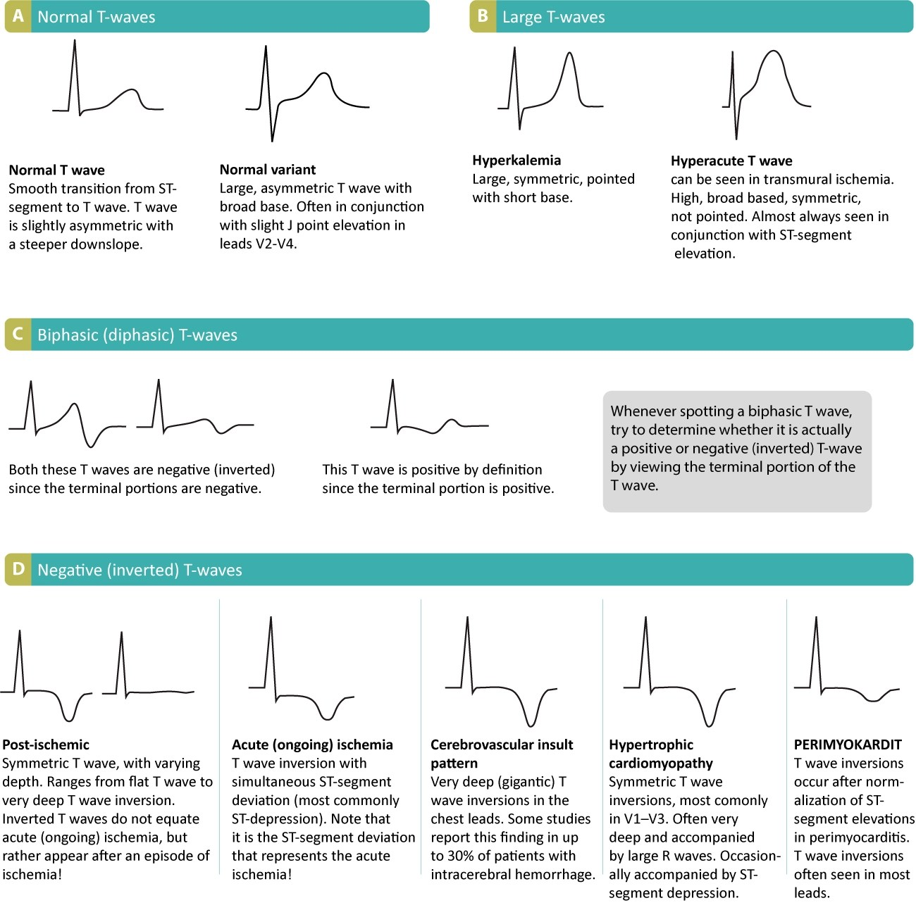 The T Wave Physiology Variants And Ecg Features Ecg Amp Echo