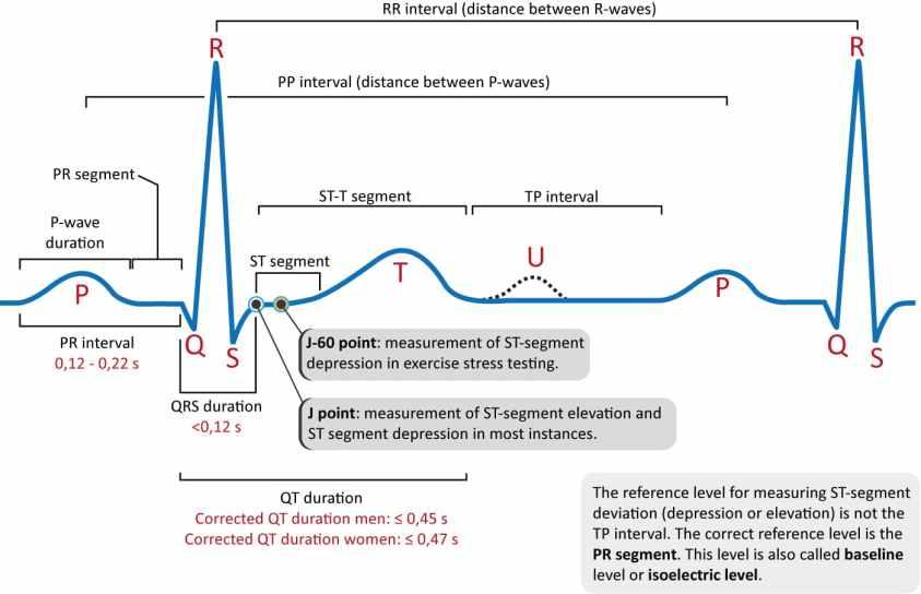 ECG interpretation: Characteristics of the normal ECG (P ...