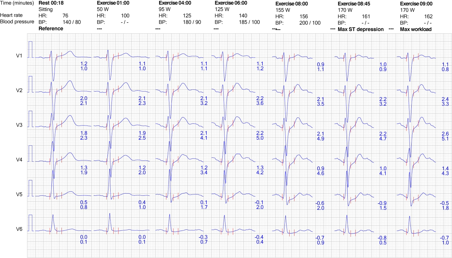 Evaluation Of Exercise Stress Test Ecg Symptoms Blood Pressure Heart Rate Performance Ecg