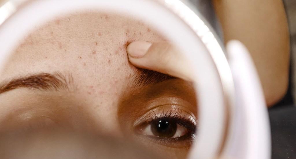 acné hormonal en venir à bout