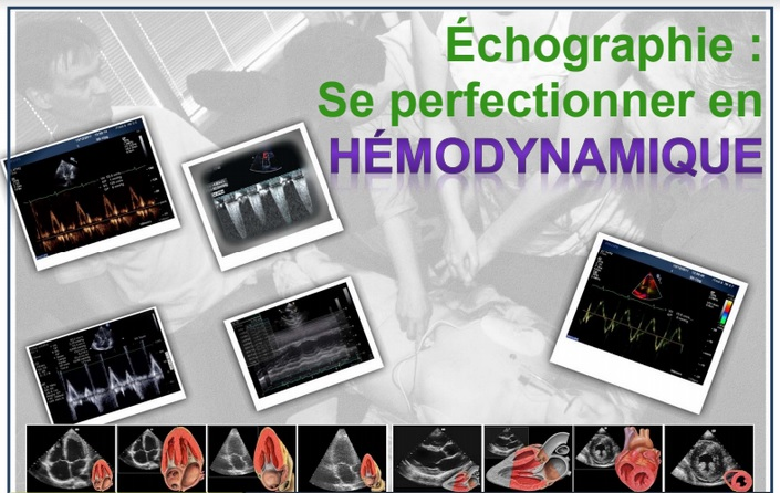 FORMATION HD2 - NANTES