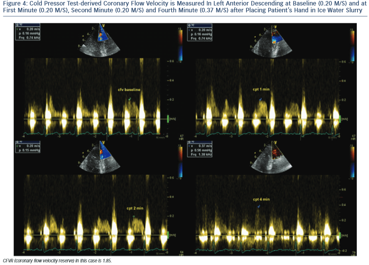 figure4-Cold-Pressor-Test-derived-Coronary-Flow-Velocity