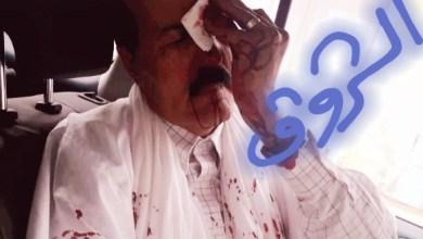 صورة تعرض موكب المرشح سيدي محمد ولد بوبكر لحادث سير وإصابة رئيس حزب البيئة