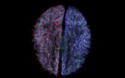 braingraph_brain_m