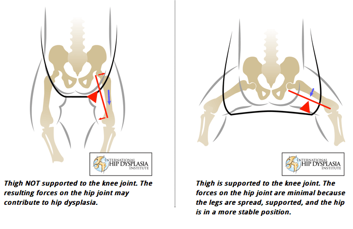 Slings Car Seats Baby Wearing And The Risk Of Hip Dysplasia