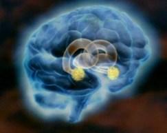 Système limbique émotion